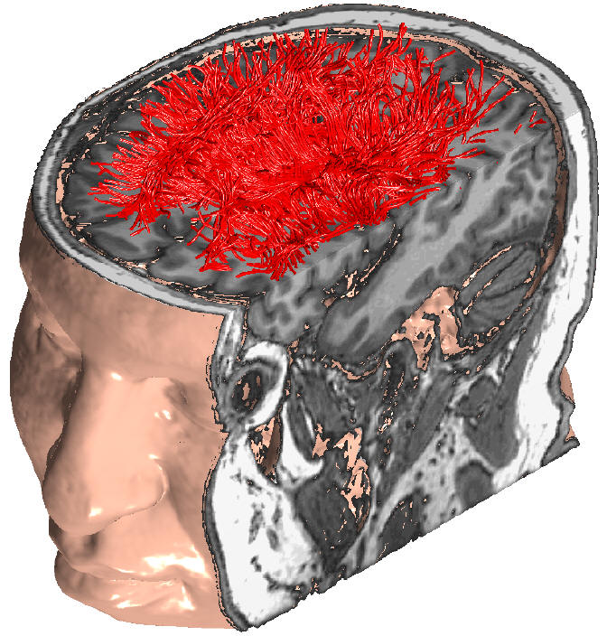 Semana - 1249 - 3 - Brain model