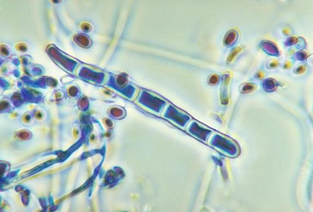 Semana - 1322 - 1 Trichophyton rubrum